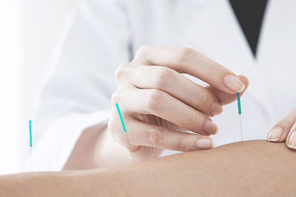 Acupuncture is one of the elements that make up the discipline often referred to as traditional                 Chinese medicine.